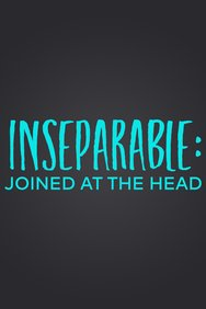 Inseparable: 10 Years Joined at the Head